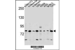 Image no. 2 for anti-Discoidin, CUB and LCCL Domain Containing 2 (DCBLD2) (AA 538-567), (C-Term) antibody (ABIN5530997)