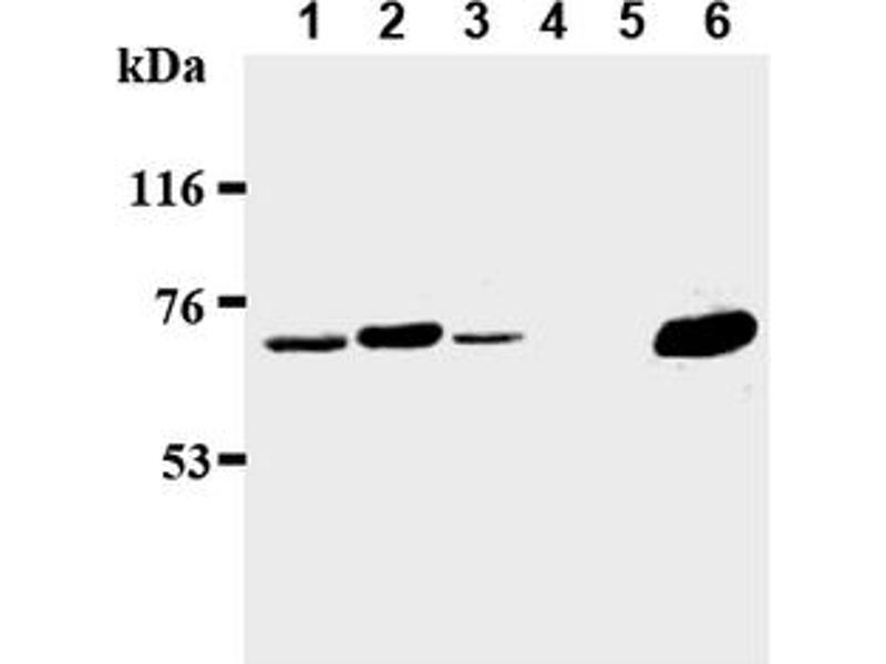 Western Blotting (WB) image for anti-Transporter 2, ATP-Binding Cassette, Sub-Family B (MDR/TAP) (TAP2) (AA 434-703) antibody (ABIN2853577)