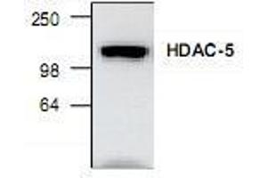 Western Blotting (WB) image for anti-Histone Deacetylase 5 (HDAC5) antibody (ABIN223300)