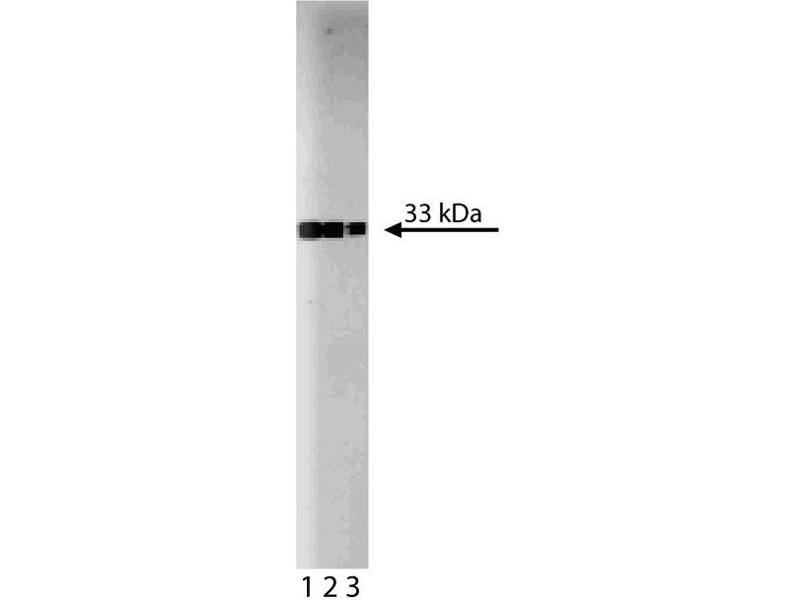 Western Blotting (WB) image for anti-Cyclin-Dependent Kinase 2 (CDK2) (AA 109-298) antibody (ABIN967776)