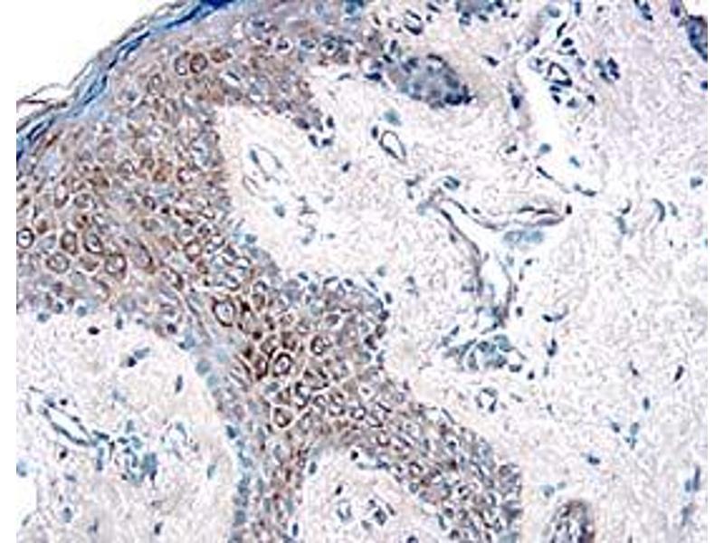 Immunohistochemistry (IHC) image for anti-Met Proto-Oncogene (MET) (AA 25-932) antibody (ABIN5012912)
