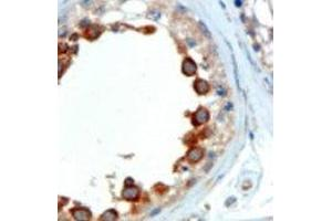 Immunohistochemistry (IHC) image for anti-ALMS1 antibody (Alstrom Syndrome 1) (C-Term) (ABIN148489)