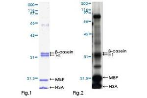 Image no. 1 for Dual-Specificity tyrosine-(Y)-phosphorylation Regulated Kinase 2 (DYRK2) (AA 1-528) protein (GST tag) (ABIN1352206)