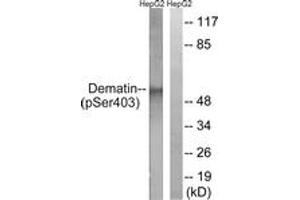 Image no. 1 for anti-erythrocyte Membrane Protein Band 4.9 (Dematin) (EPB49) (AA 356-405), (pSer403) antibody (ABIN1531580)