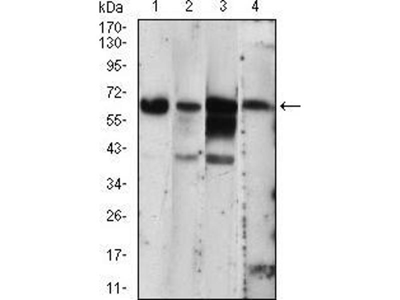 Western Blotting (WB) image for anti-Eukaryotic Translation Initiation Factor 2-alpha Kinase 2 (EIF2AK2) (AA 329-551) antibody (ABIN2682988)