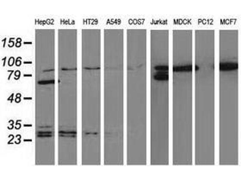 image for anti-Catenin (Cadherin-Associated Protein), beta 1, 88kDa (CTNNB1) antibody (ABIN1496890)