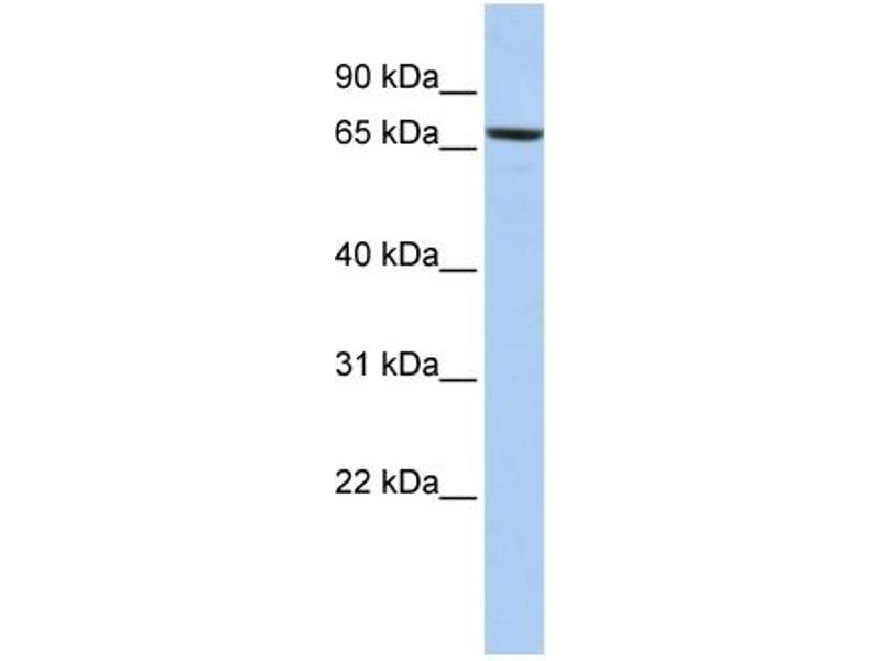 Western Blotting (WB) image for anti-Protein Disulfide Isomerase Family A, Member 4 (PDIA4) (Middle Region) antibody (ABIN502751)