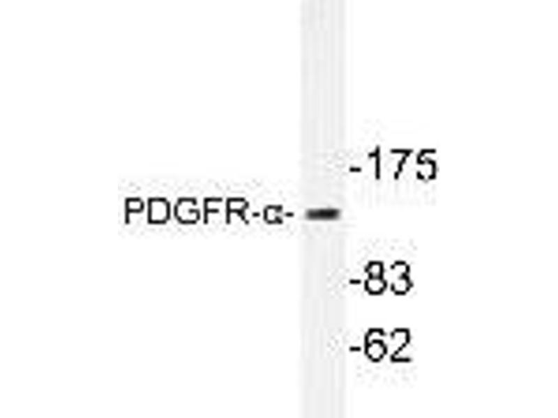 Western Blotting (WB) image for anti-PDGFRA antibody (Platelet-Derived Growth Factor Receptor, alpha Polypeptide) (ABIN446762)