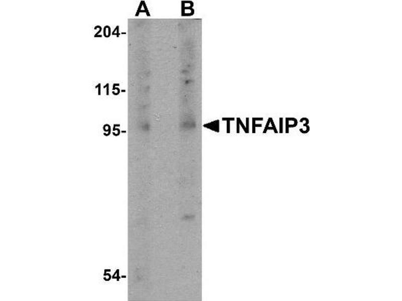 TNFAIP3 抗体 (Tumor Necrosis Factor, alpha-Induced Protein 3) (Center)