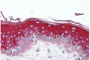 Immunohistochemistry (Paraffin-embedded Sections) (IHC (p)) image for anti-MLST8 Antikörper (MTOR Associated Protein, LST8 Homolog (S. Cerevisiae)) (AA 150-200) (ABIN297122)