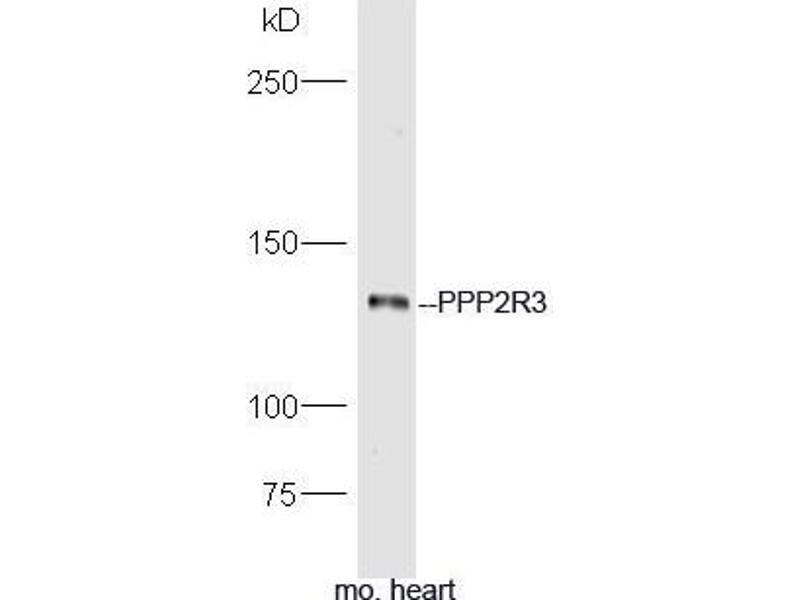 Western Blotting (WB) image for anti-PPP2R3A antibody (Protein Phosphatase 2, Regulatory Subunit B'', alpha) (AA 830-880) (ABIN714326)