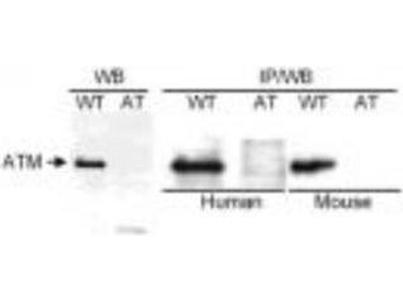 Western Blotting (WB) image for anti-Ataxia Telangiectasia Mutated (ATM) (AA 2550-2600) antibody (ABIN151739)
