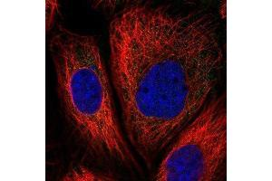 Immunofluorescence (IF) image for anti-CAP-GLY Domain Containing Linker Protein 1 (CLIP1) antibody (ABIN4299211)