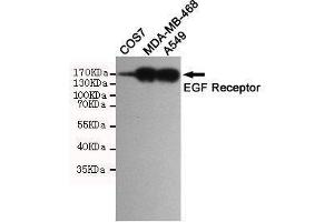 Western Blotting (WB) image for anti-EGFR antibody (Epidermal Growth Factor Receptor) (ABIN2169502)
