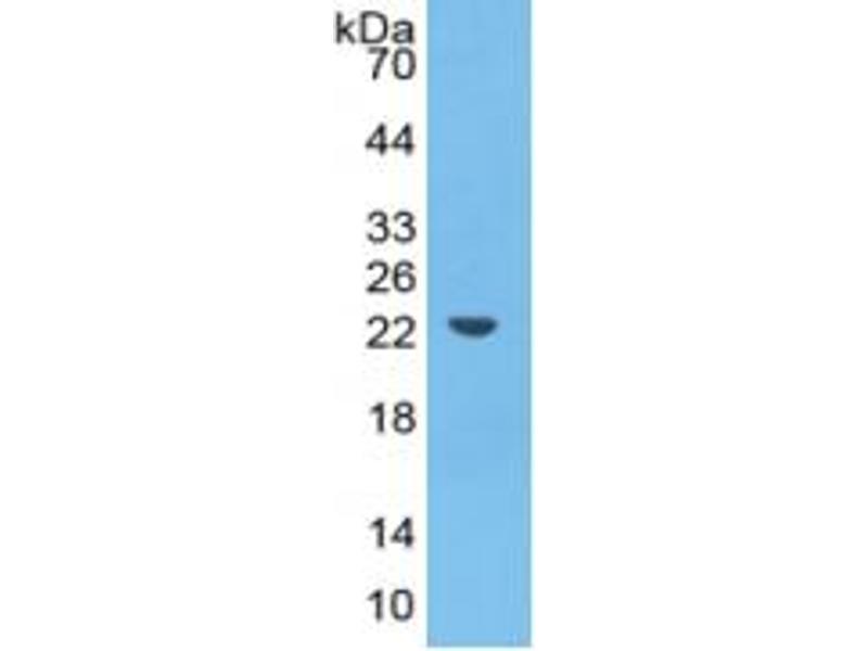 Image no. 5 for Haptoglobin (HP) ELISA Kit (ABIN6574214)