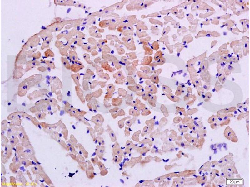 Immunohistochemistry (IHC) image for anti-Signal Transducer and Activator of Transcription 2, 113kDa (STAT2) (AA 668-718) antibody (ABIN738246)