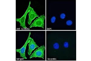 Image no. 1 for anti-Solute Carrier Family 40 (Iron-Regulated Transporter), Member 1 (SLC40A1) (AA 245-259) antibody (ABIN2613478)