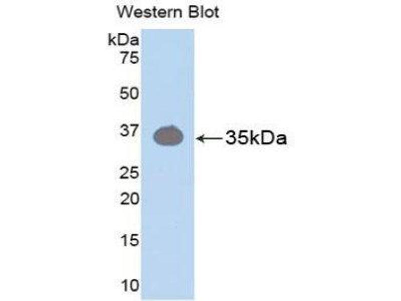 Western Blotting (WB) image for anti-Protein Kinase C, beta (PRKCB) (AA 342-600) antibody (ABIN1174155)