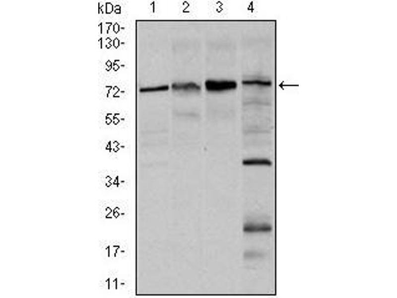 Western Blotting (WB) image for anti-FOXO1 antibody (Forkhead Box O1) (ABIN969521)