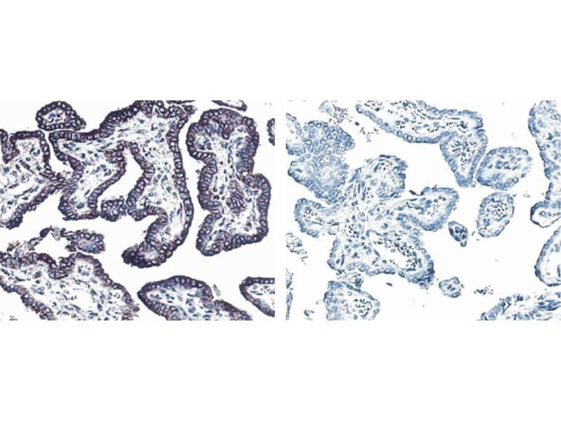 Immunohistochemistry (IHC) image for anti-V-Erb-B2 Erythroblastic Leukemia Viral Oncogene Homolog 3 (Avian) (ERBB3) antibody (ABIN967437)