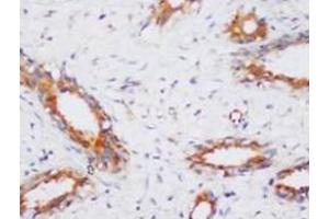 Immunohistochemistry (Paraffin-embedded Sections) (IHC (p)) image for anti-Protein Phosphatase 2, Catalytic Subunit, alpha Isozyme (PPP2CA) (N-Term) antibody (ABIN1108712)