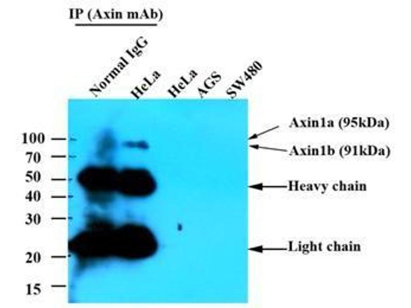 Western Blotting (WB) image for anti-Axin 1 (AXIN1) antibody (ABIN567615)