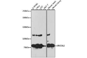Image no. 1 for anti-Excision Repair Cross-Complementing Rodent Repair Deficiency, Complementation Group 6-Like 2 (ERCC6L2) antibody (ABIN6567801)