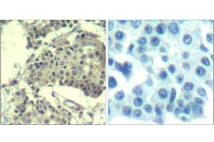 Immunohistochemistry (Paraffin-embedded Sections) (IHC (p)) image for anti-Mechanistic Target of Rapamycin (serine/threonine Kinase) (FRAP1) antibody (ABIN349393)