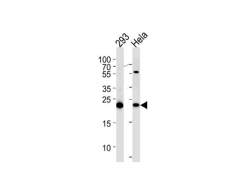 Western Blotting (WB) image for anti-IL1RN antibody (Interleukin 1 Receptor Antagonist) (AA 147-177) (ABIN1882098)