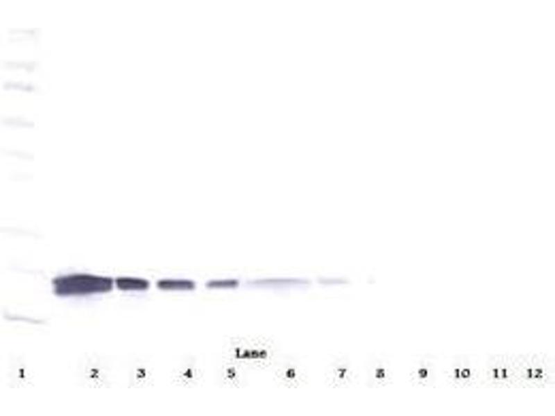 image for anti-Vascular Endothelial Growth Factor A (VEGFA) antibody (ABIN465273)