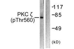 Western Blotting (WB) image for anti-PKC zeta antibody (Protein Kinase C, zeta) (pThr560) (ABIN1531510)