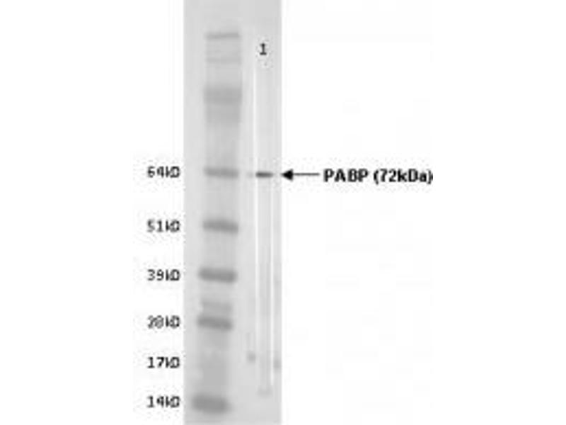 image for anti-Poly(A) Binding Protein, Cytoplasmic 1 (PABPC1) antibody (ABIN108539)