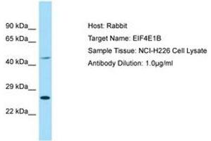 Image no. 1 for anti-Eukaryotic Translation Initiation Factor 4E Family Member 1B (EIF4E1B) (AA 114-163) antibody (ABIN6749878)