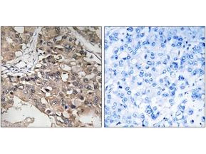 Immunohistochemistry (IHC) image for anti-Mitogen-Activated Protein Kinase Kinase Kinase 7 (MAP3K7) (AA 161-210) antibody (ABIN1533087)