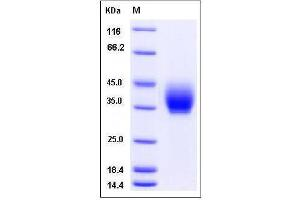 Image no. 1 for Inducible T-Cell Co-Stimulator (ICOS) (AA 1-142), (Extracellular Domain) protein (Fc Tag) (ABIN2007838)