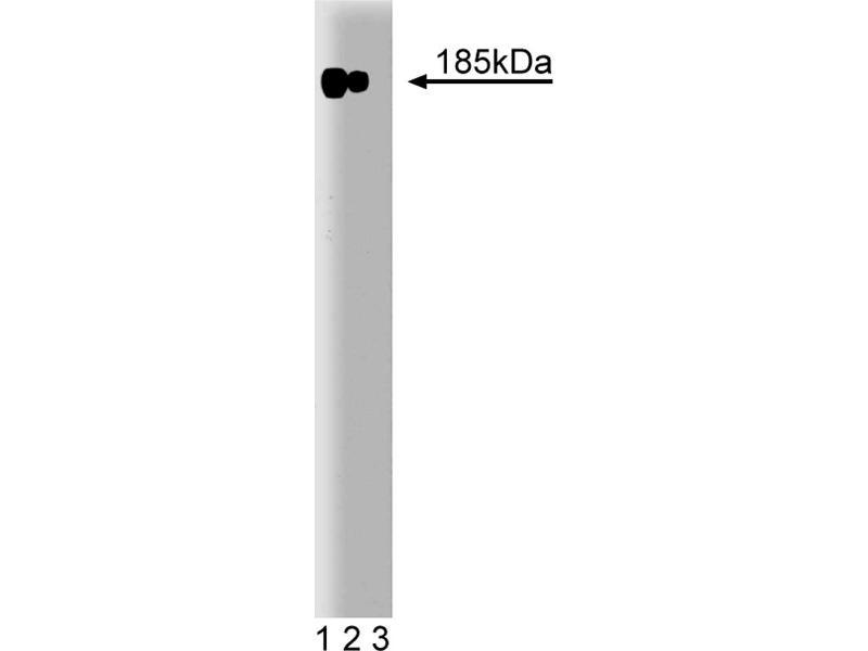 Western Blotting (WB) image for anti-V-Erb-B2 erythroblastic Leukemia Viral Oncogene Homolog 2, Neuro/glioblastoma Derived Oncogene Homolog (Avian) (ERBB2) (AA 182-373) antibody (ABIN967787)