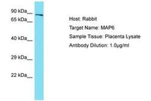 Image no. 1 for anti-Microtubule-Associated Protein 6 (MAP6) (AA 360-409) antibody (ABIN6750439)