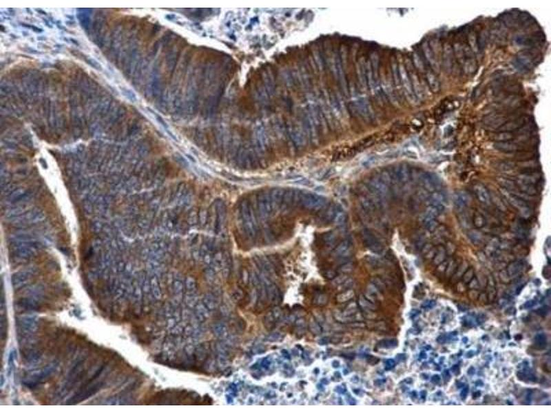 Immunohistochemistry (Paraffin-embedded Sections) (IHC (p)) image for anti-Interleukin 1 Receptor, Type II (IL1R2) (Center) antibody (ABIN442643)