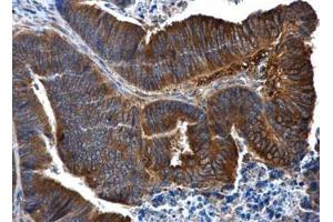 Immunohistochemistry (Paraffin-embedded Sections) (IHC (p)) image for anti-IL1R2 antibody (Interleukin 1 Receptor, Type II) (Center) (ABIN442643)