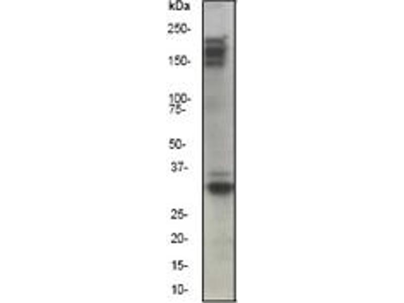 Western Blotting (WB) image for anti-MST1R antibody (Macrophage Stimulating 1 Receptor (C-Met-Related tyrosine Kinase)) (N-Term) (ABIN258450)