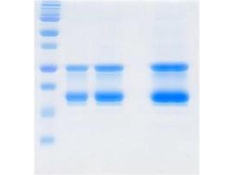 SDS-PAGE (SDS) image for Influenzs B Matrix Protein 1 protein (ABIN3172539)