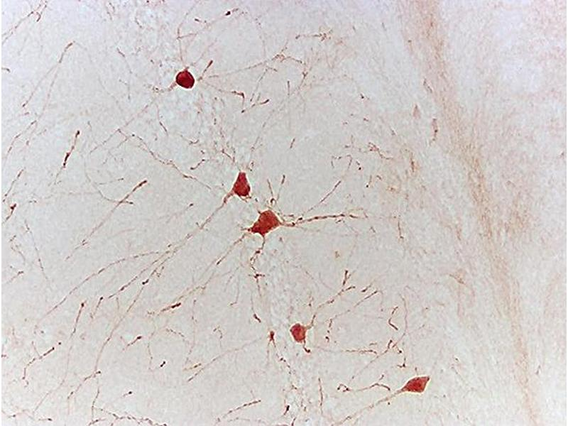 Immunohistochemistry (IHC) image for anti-Neurotrophin 3 antibody (NTF3) (AA 30-80) (ABIN725645)