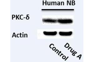 Western Blotting (WB) image for anti-Protein Kinase C, delta (PKCd) antibody (ABIN4345828)