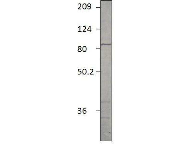 Western Blotting (WB) image for anti-phosphodiesterase 2A, CGMP-Stimulated (PDE2A) antibody (ABIN1040308)