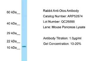 Western Blotting (WB) image for anti-Otospiralin (OTOS) (Middle Region) antibody (ABIN2785135)