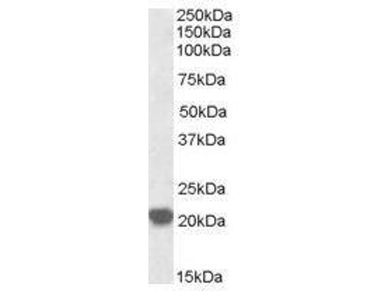 image for anti-RAC2 antibody (Ras-Related C3 Botulinum Toxin Substrate 2 (Rho Family, Small GTP Binding Protein Rac2)) (C-Term) (ABIN374166)