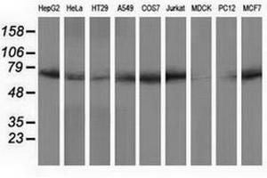 Image no. 2 for anti-Peptidylprolyl Isomerase Domain and WD Repeat Containing 1 (PPWD1) antibody (ABIN1500395)