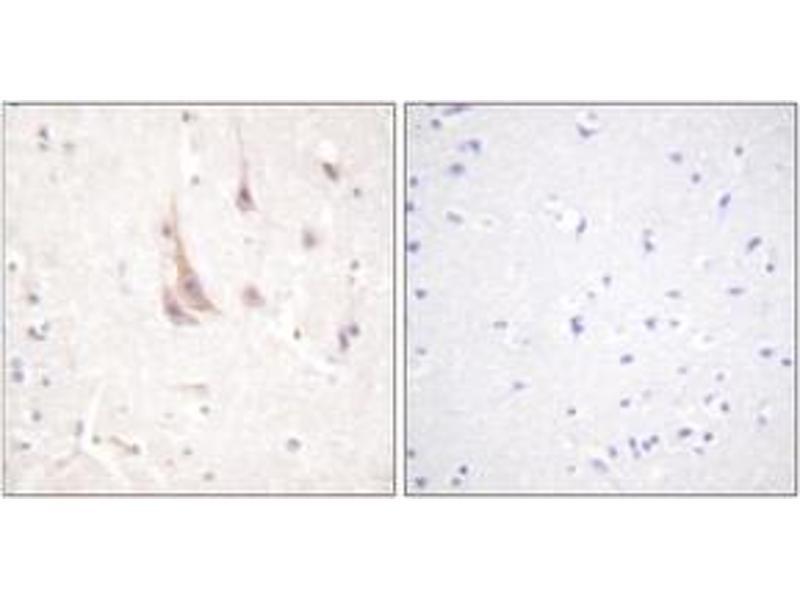 Immunohistochemistry (IHC) image for anti-Protein Kinase C, zeta (PRKCZ) (AA 526-575) antibody (ABIN1532525)