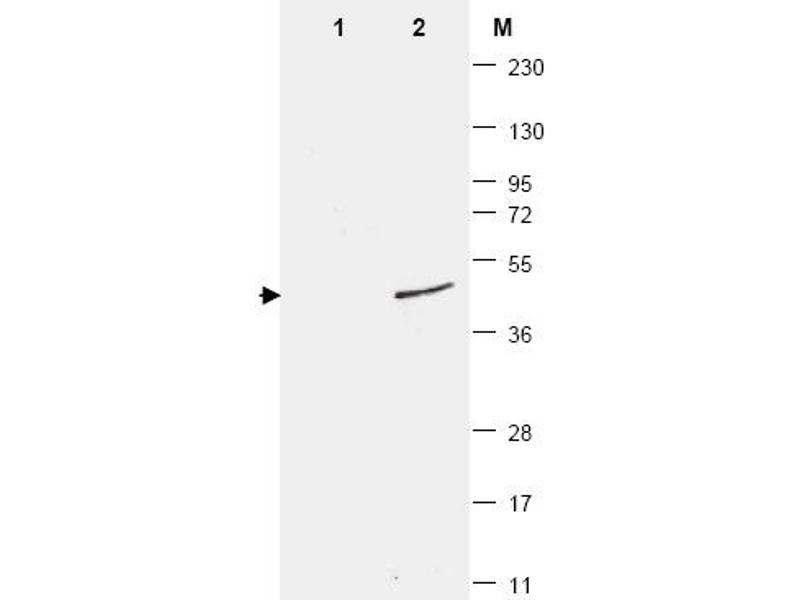 Western Blotting (WB) image for anti-SMT3 Suppressor of Mif Two 3 Homolog 1 (S. Cerevisiae) (SUMO1) antibody (ABIN400792)