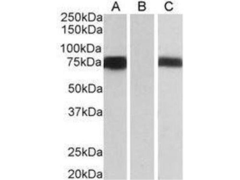 Western Blotting (WB) image for anti-Forkhead Box C1 (FOXC1) (C-Term) antibody (ABIN249940)